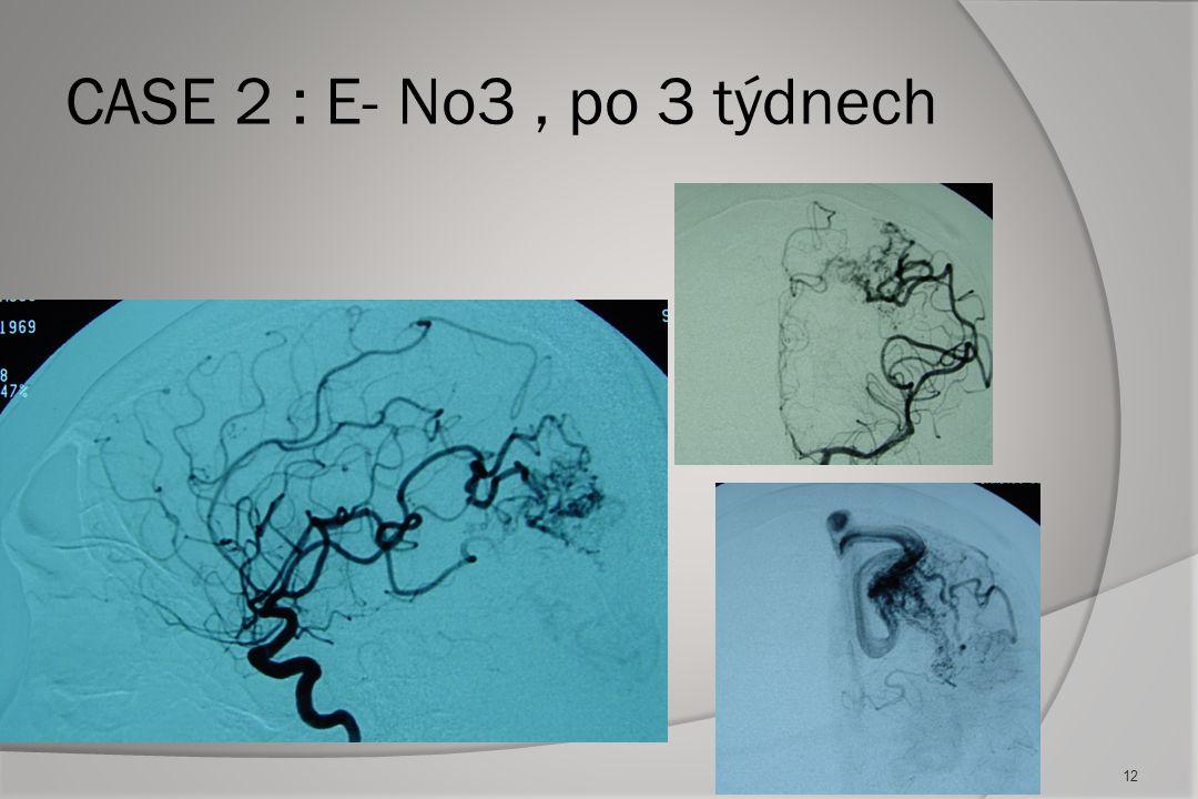 CASE 2 : E- No3 , po 3 týdnech