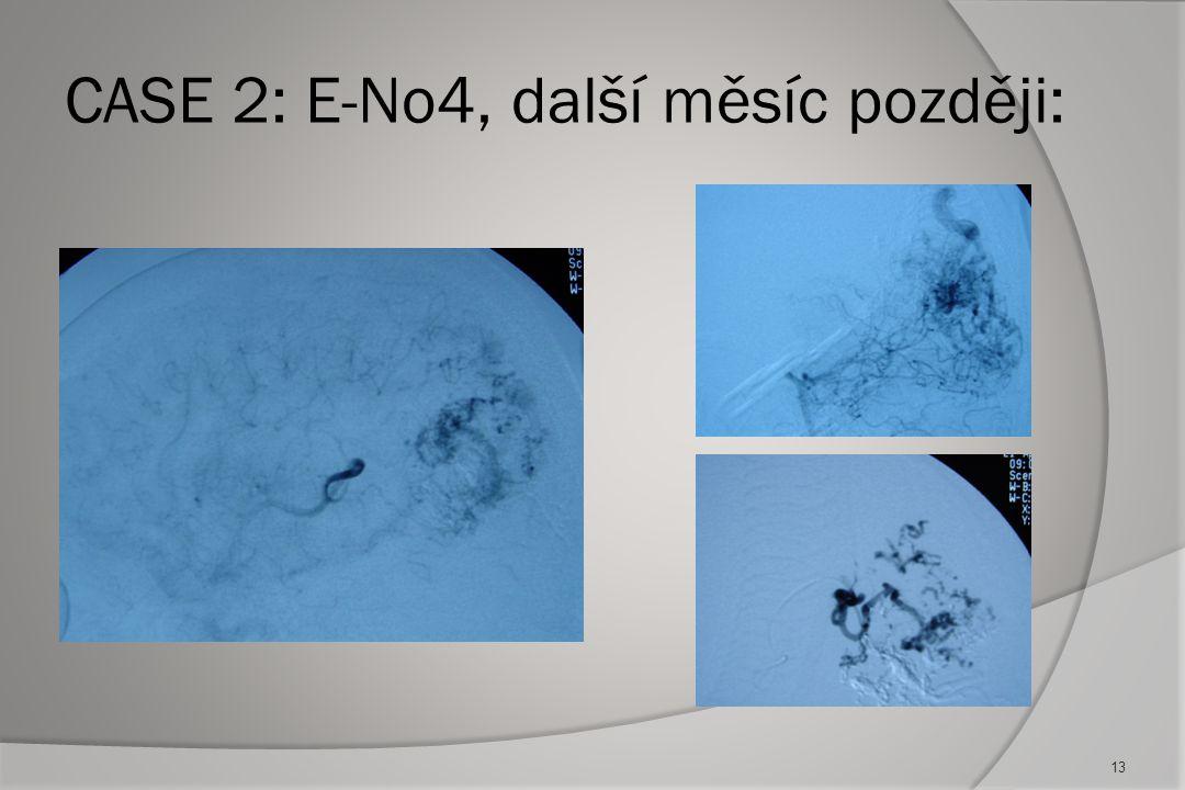CASE 2: E-No4, další měsíc později: