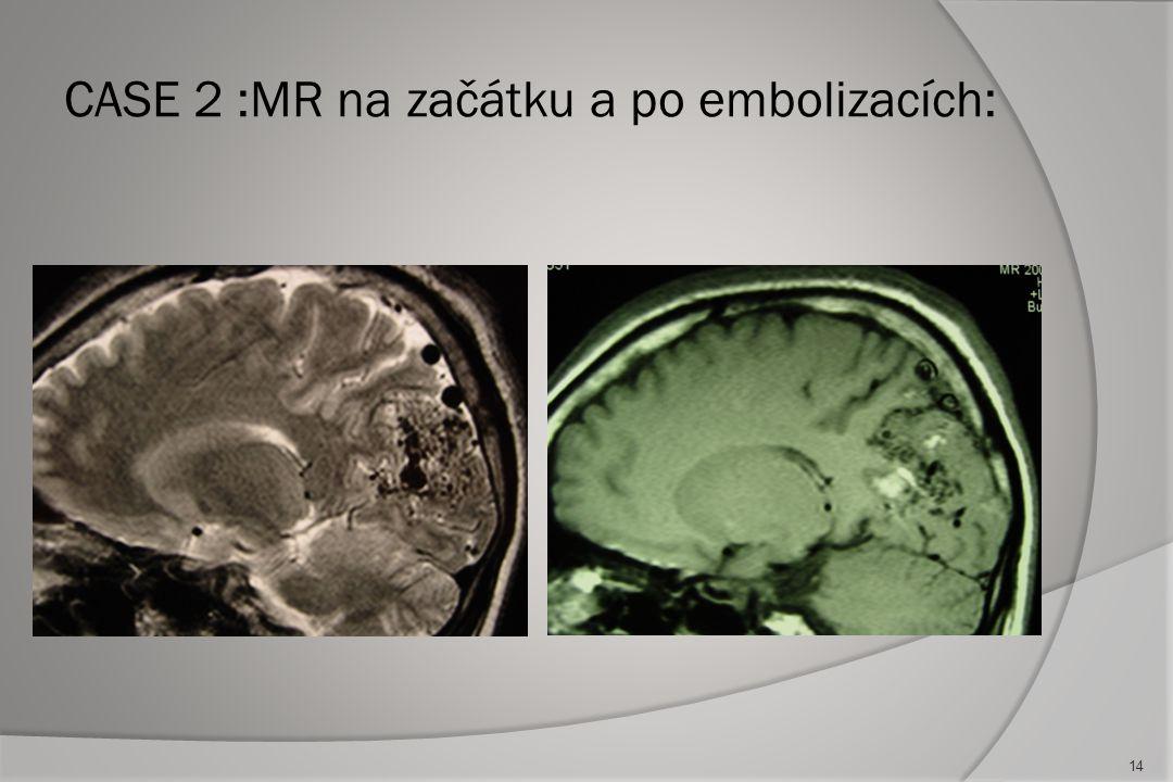 CASE 2 :MR na začátku a po embolizacích: