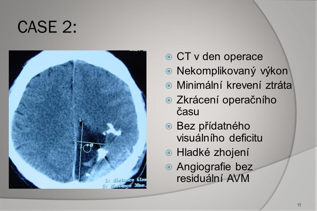 CASE 2: CT v den operace Nekomplikovaný výkon Minimální krevení ztráta