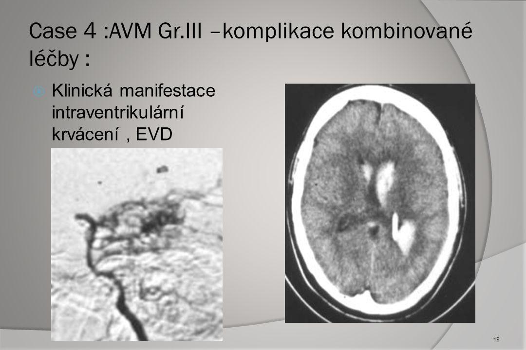Case 4 :AVM Gr.III –komplikace kombinované léčby :