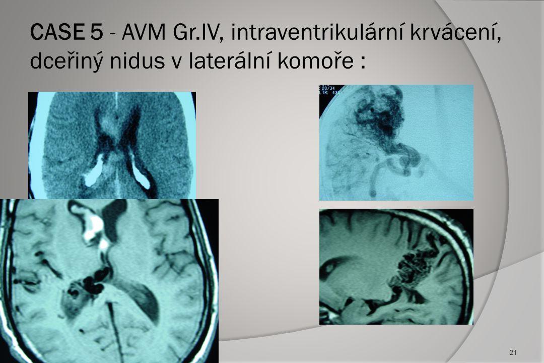 CASE 5 - AVM Gr.IV, intraventrikulární krvácení, dceřiný nidus v laterální komoře :