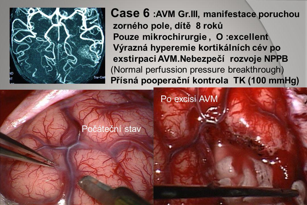 Case 6 :AVM Gr.III, manifestace poruchou
