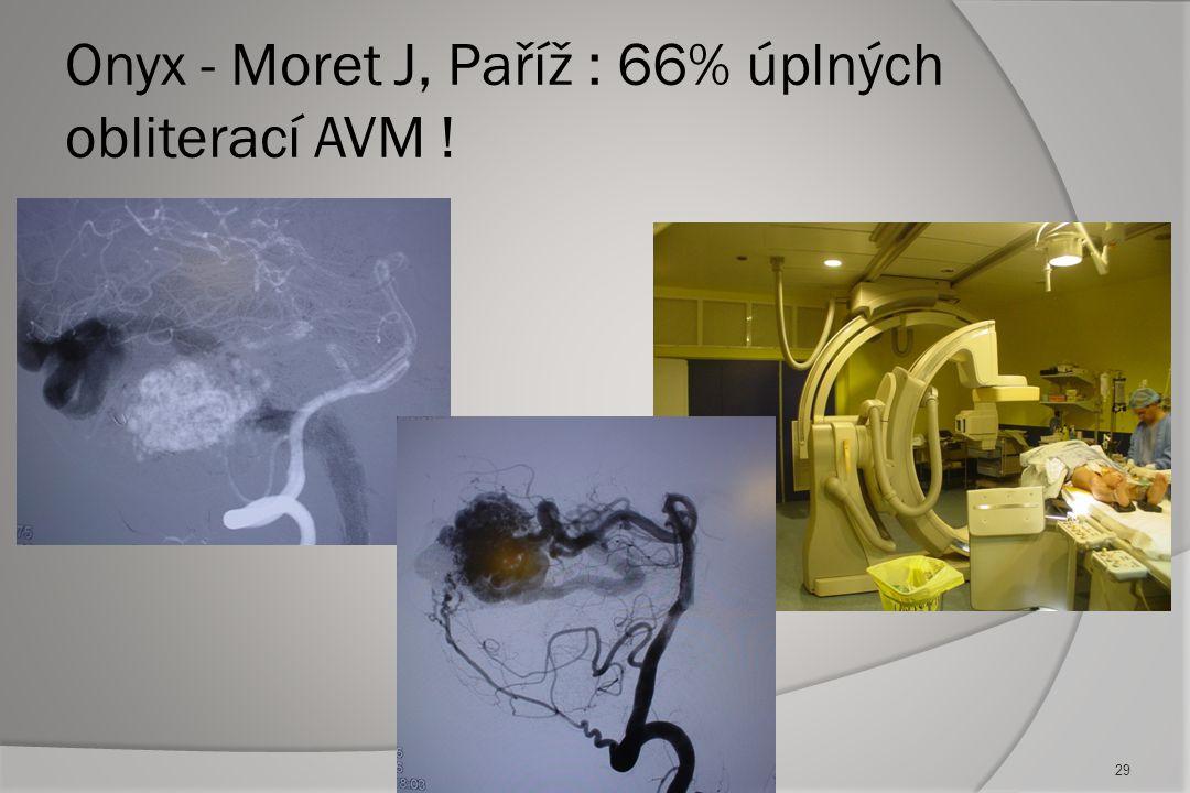 Onyx - Moret J, Paříž : 66% úplných obliterací AVM !