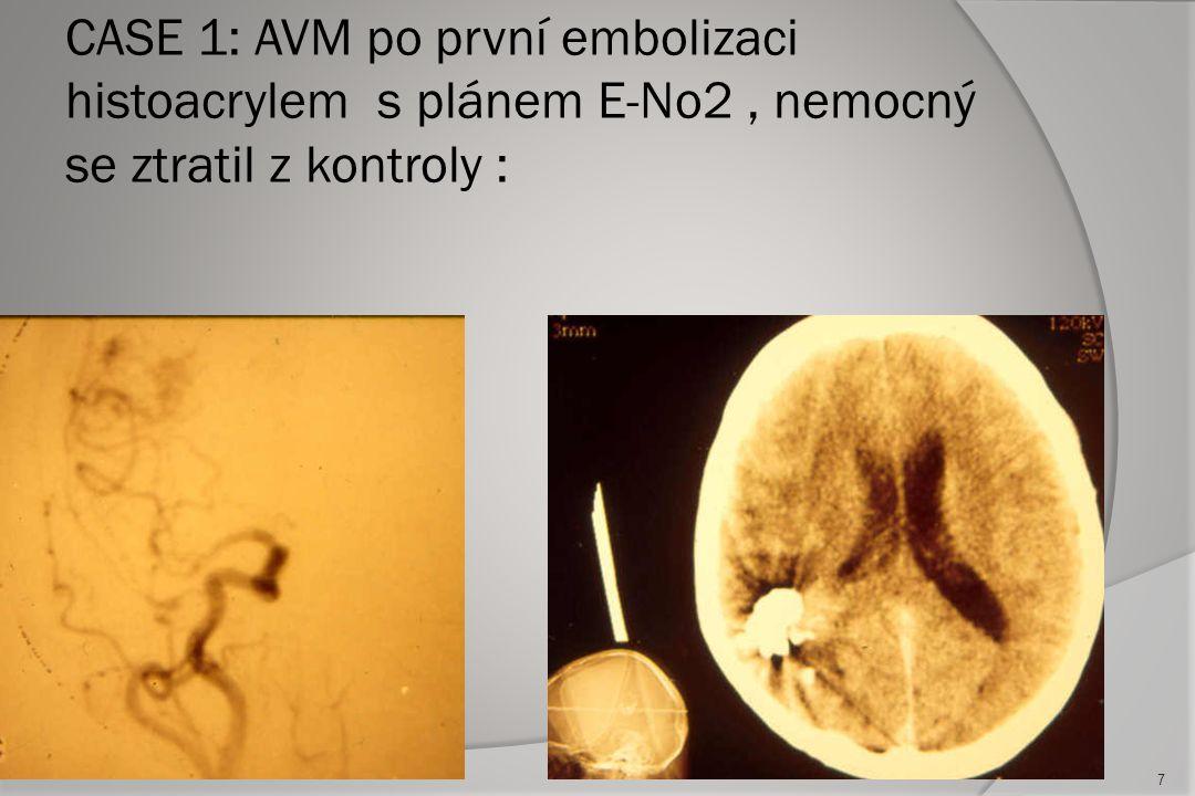 CASE 1: AVM po první embolizaci histoacrylem s plánem E-No2 , nemocný se ztratil z kontroly :