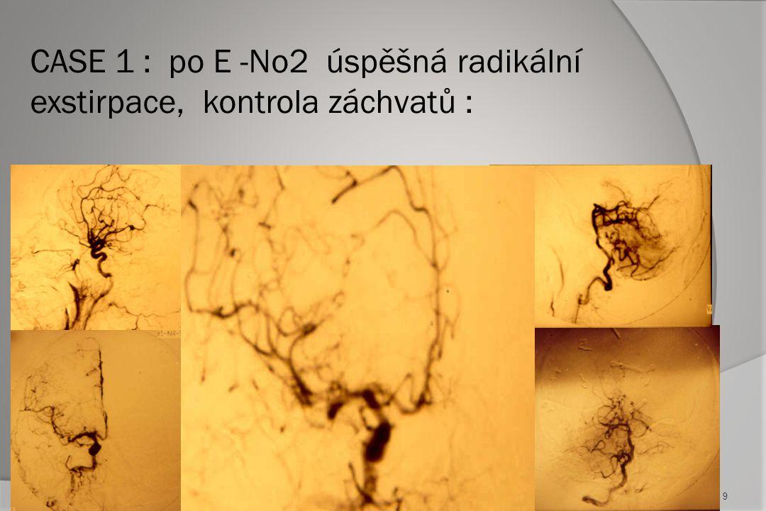 CASE 1 : po E -No2 úspěšná radikální exstirpace, kontrola záchvatů :