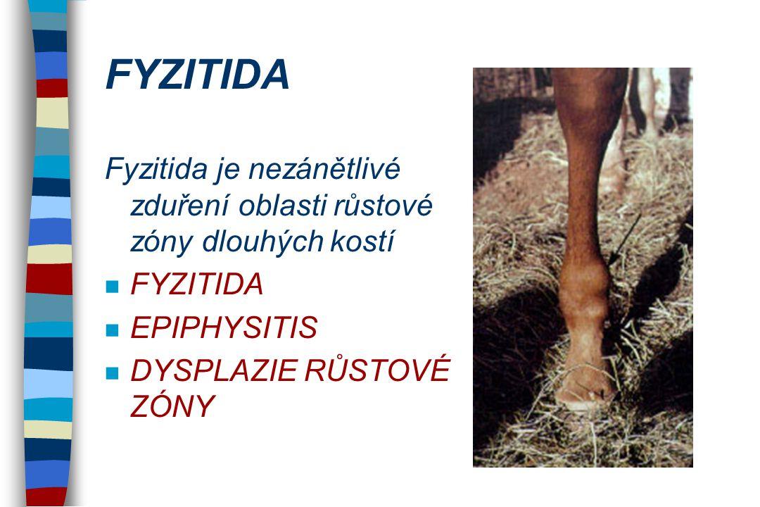FYZITIDA Fyzitida je nezánětlivé zduření oblasti růstové zóny dlouhých kostí. FYZITIDA. EPIPHYSITIS.