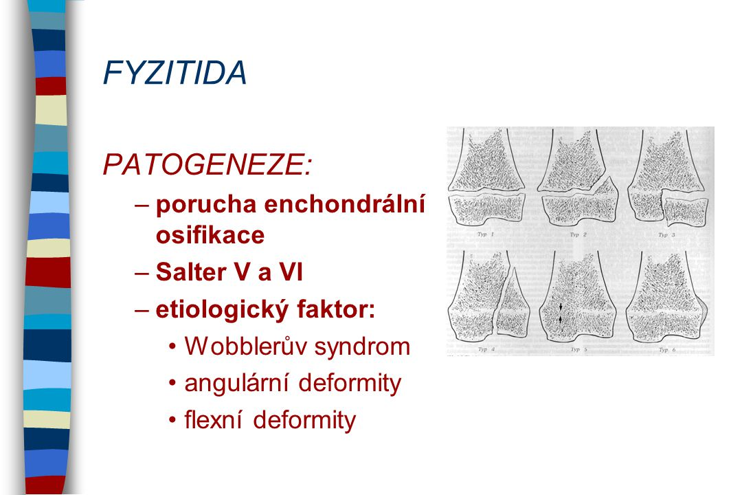 FYZITIDA PATOGENEZE: porucha enchondrální osifikace Salter V a VI