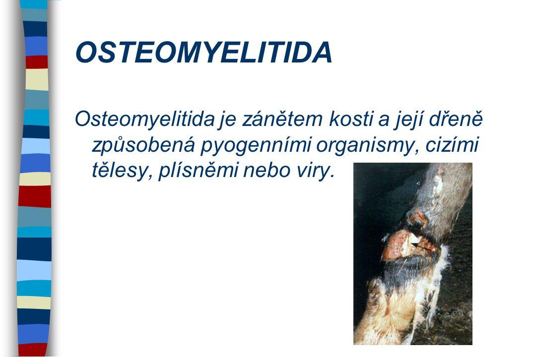 OSTEOMYELITIDA Osteomyelitida je zánětem kosti a její dřeně způsobená pyogenními organismy, cizími tělesy, plísněmi nebo viry.