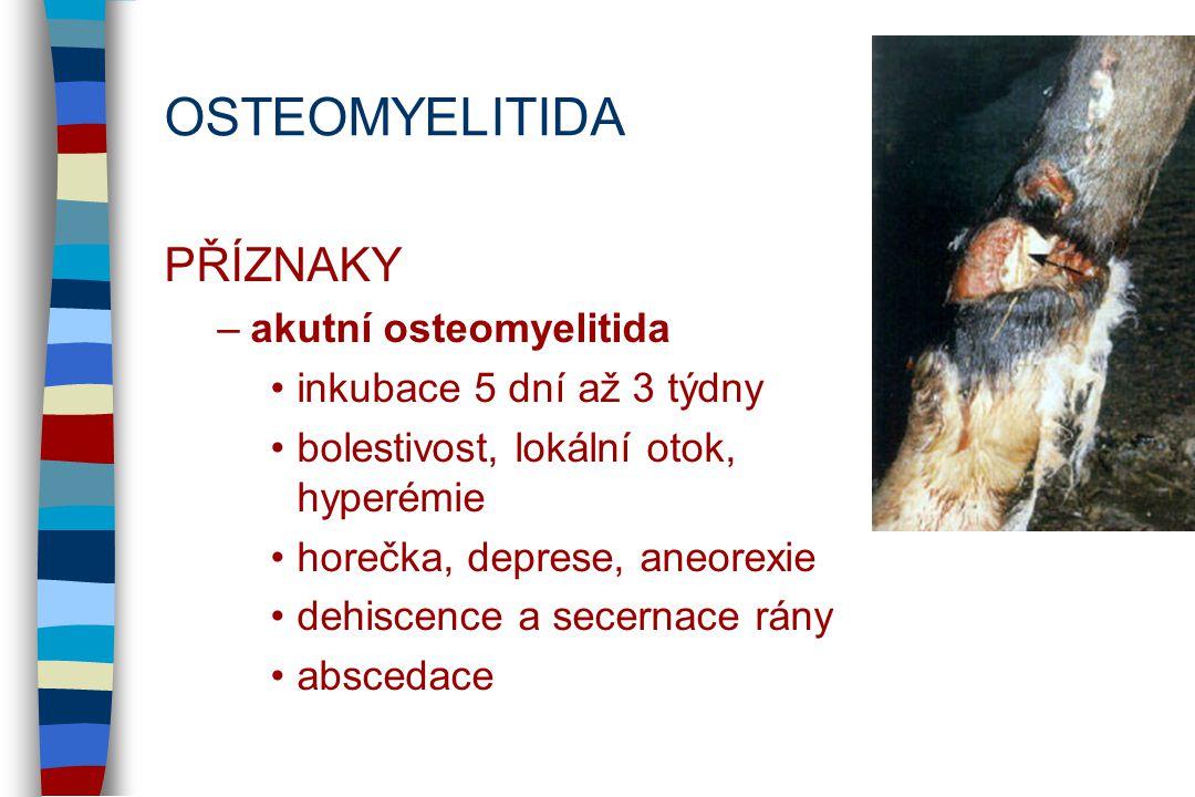 OSTEOMYELITIDA PŘÍZNAKY akutní osteomyelitida