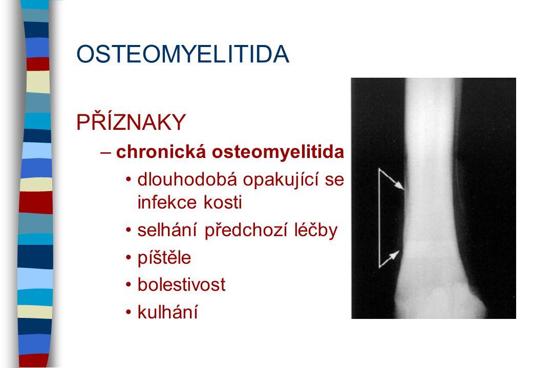 OSTEOMYELITIDA PŘÍZNAKY chronická osteomyelitida