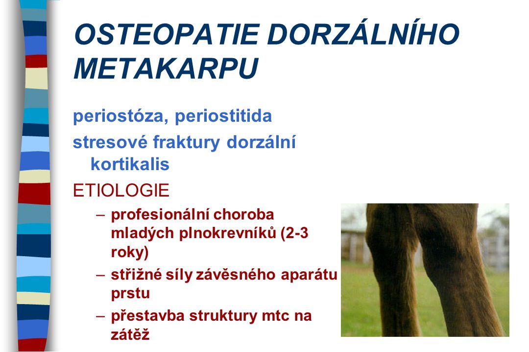 OSTEOPATIE DORZÁLNÍHO METAKARPU