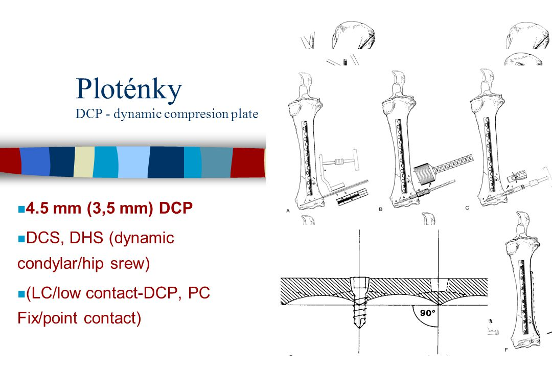 Ploténky DCP - dynamic compresion plate