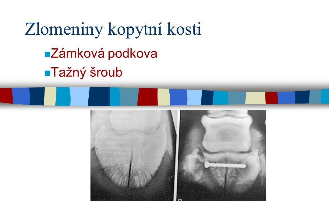 Zlomeniny kopytní kosti