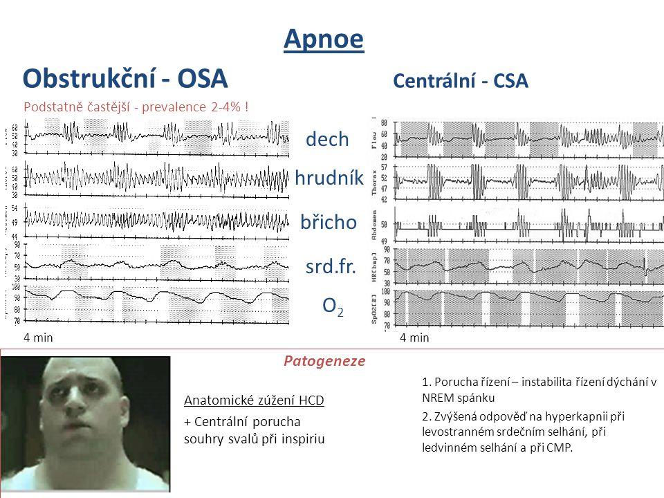 Apnoe Obstrukční - OSA Centrální - CSA dech hrudník břicho srd.fr. O2