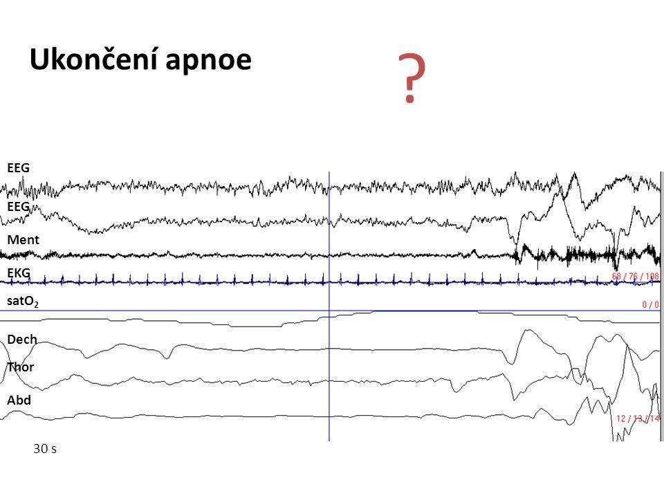 Ukončení apnoe EEG EEG Ment EKG satO2 Dech Thor Abd 30 s