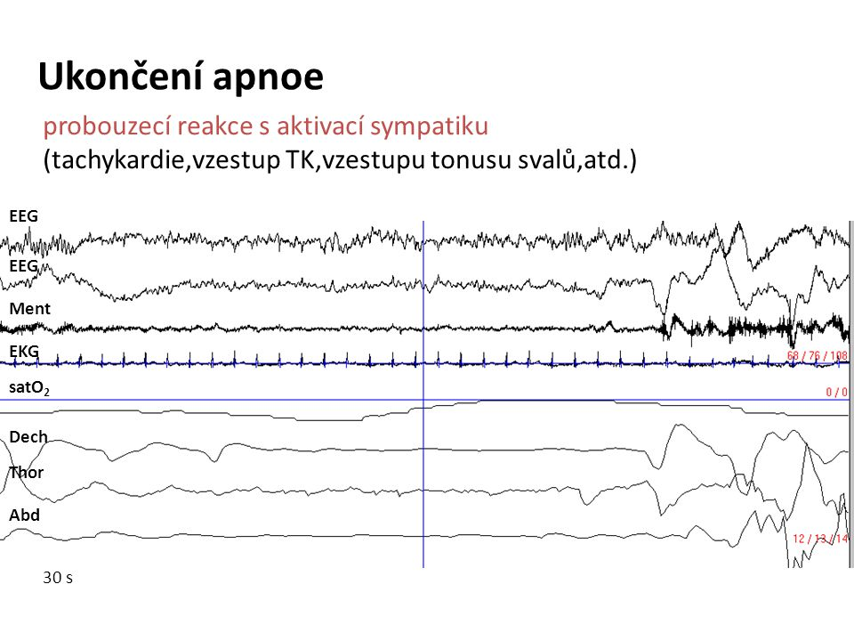 Ukončení apnoe probouzecí reakce s aktivací sympatiku (tachykardie,vzestup TK,vzestupu tonusu svalů,atd.)