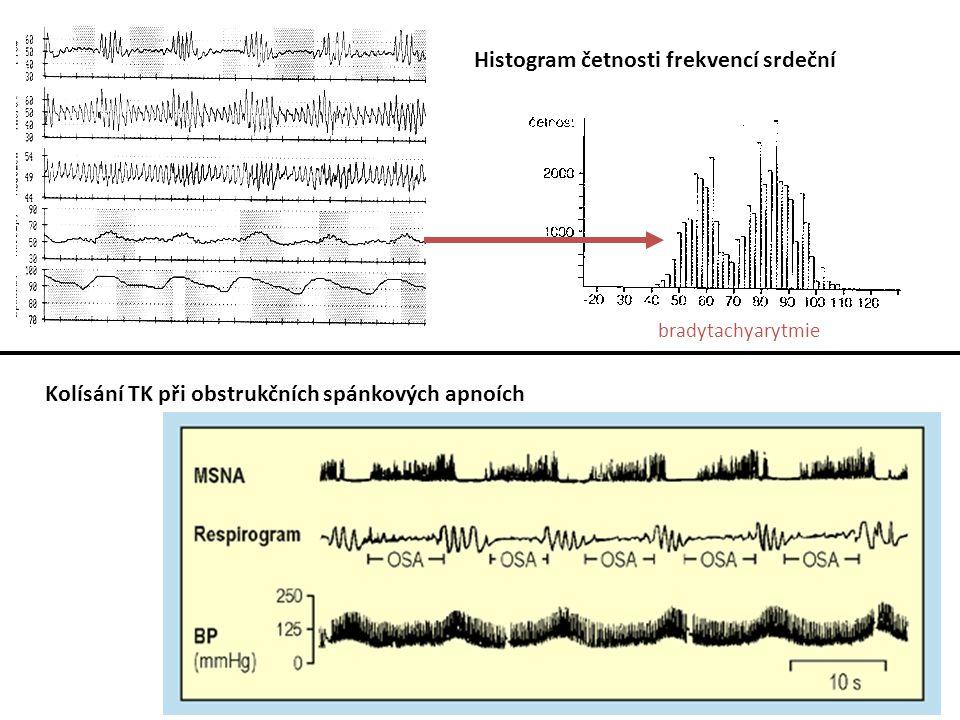 Histogram četnosti frekvencí srdeční