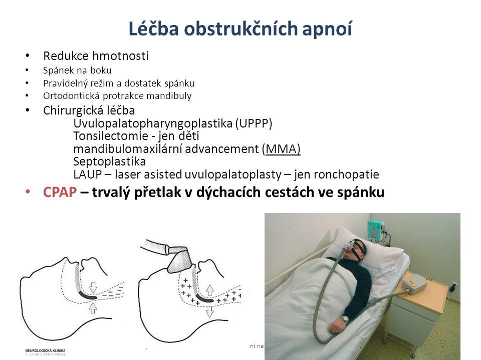Léčba obstrukčních apnoí