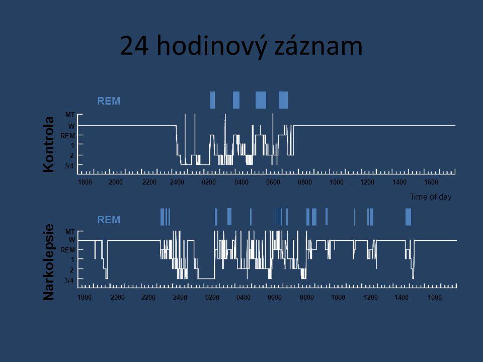 24 hodinový záznam Kontrola Narkolepsie REM REM Time of day