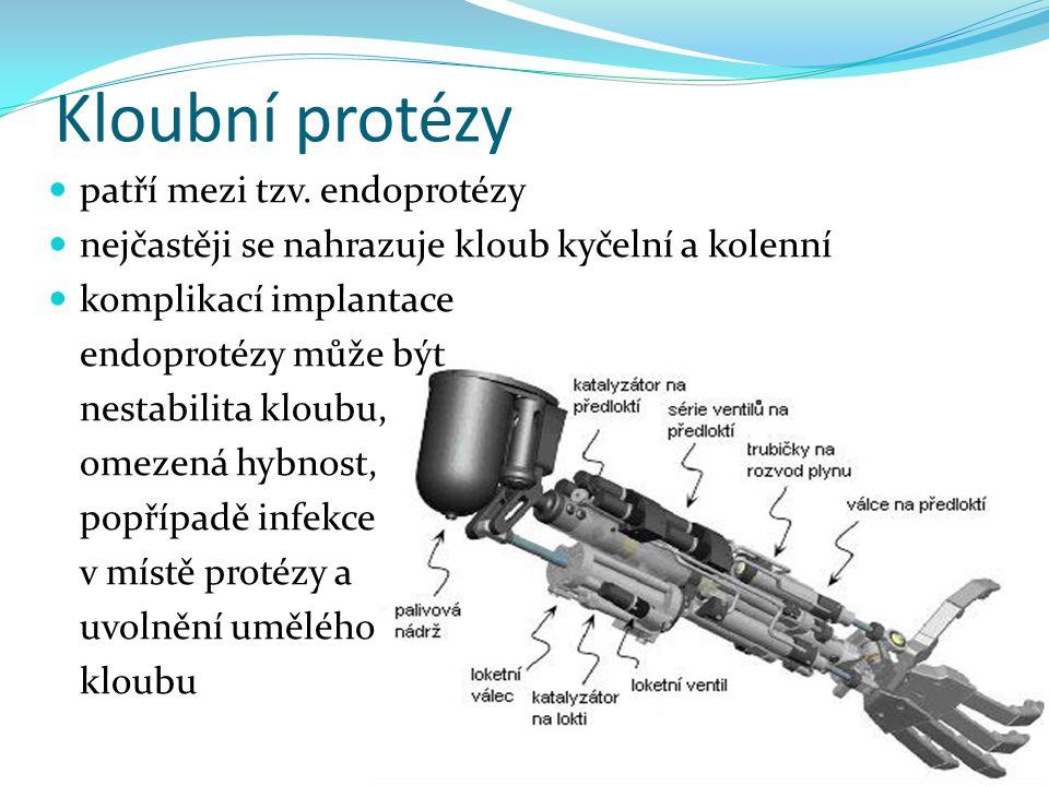 Kloubní protézy patří mezi tzv. endoprotézy