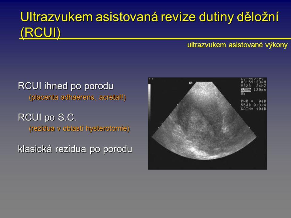 Ultrazvukem asistovaná revize dutiny děložní (RCUI)