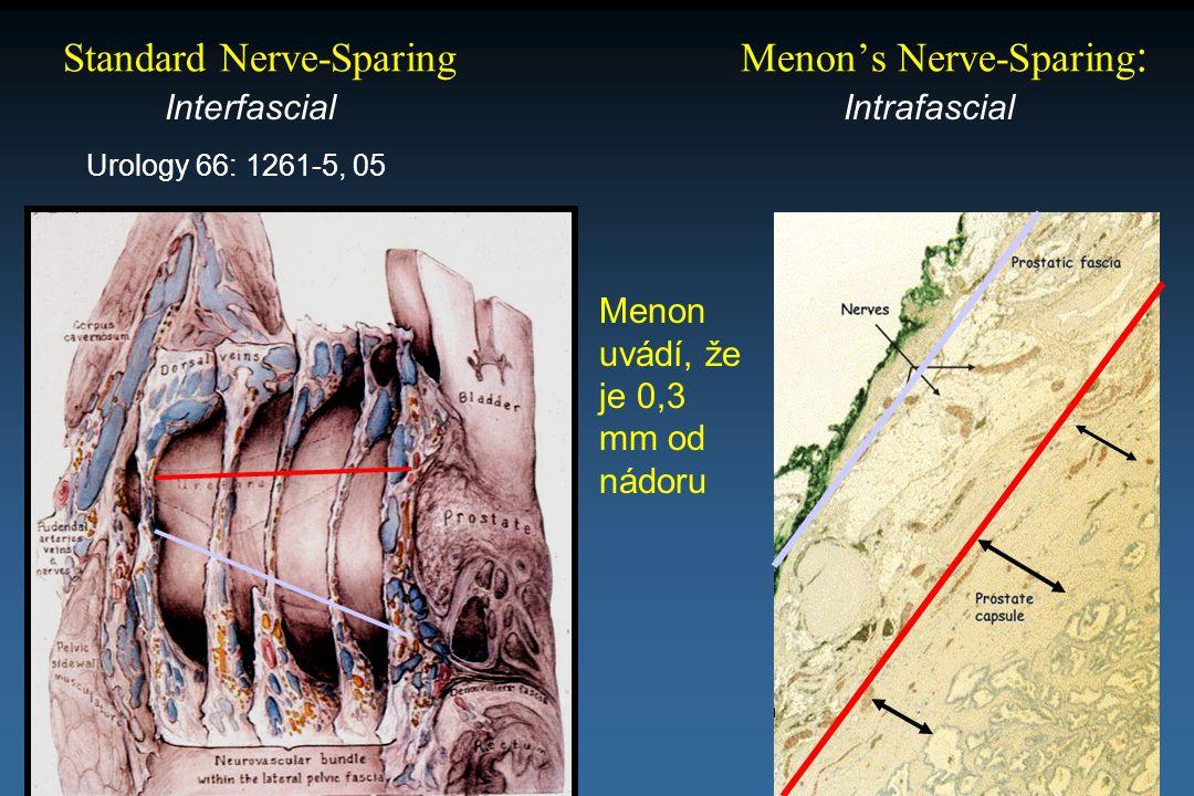 Standard Nerve-Sparing Menon's Nerve-Sparing: