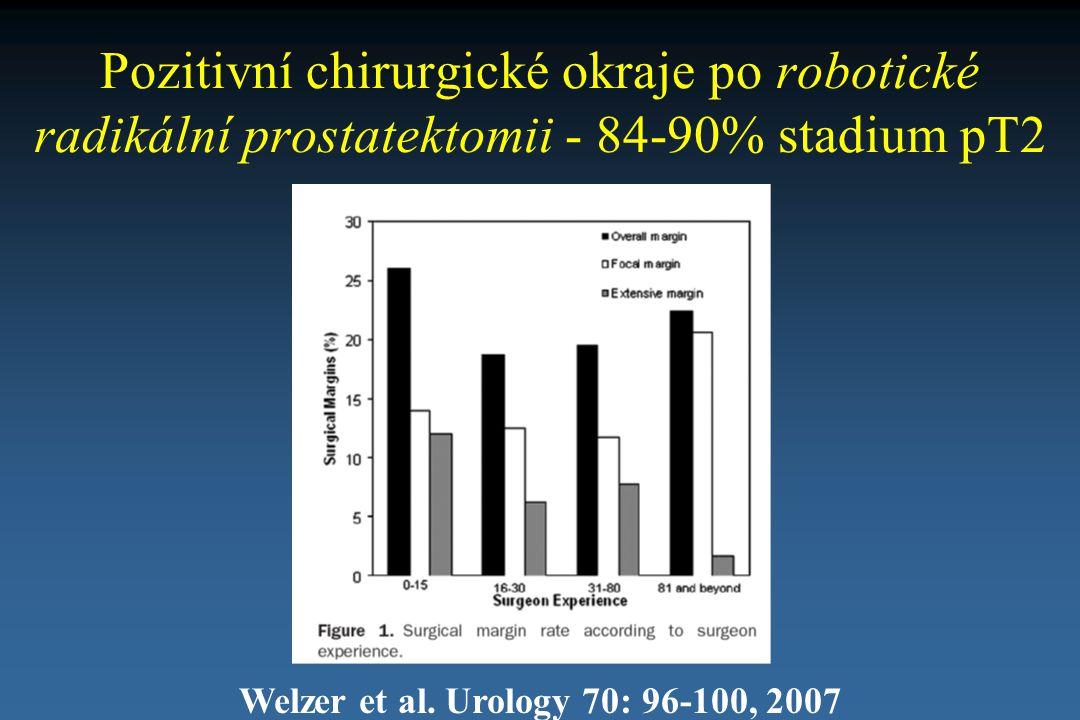 Pozitivní chirurgické okraje po robotické radikální prostatektomii - 84-90% stadium pT2
