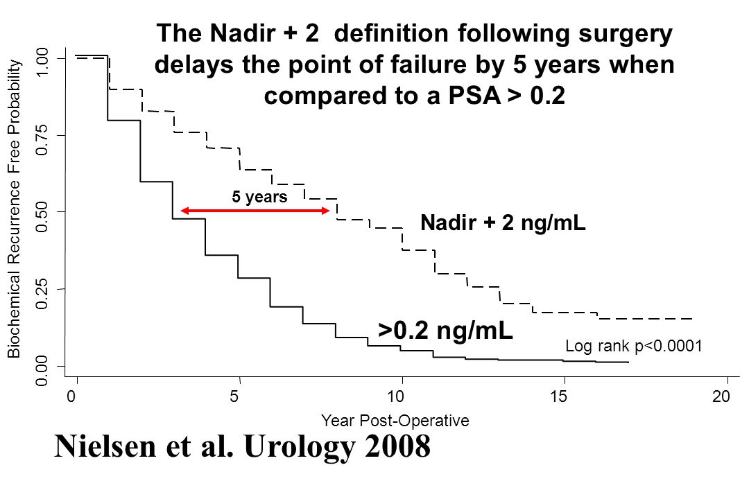 The Nadir + 2 definition following surgery delays the point of failure by 5 years when compared to a PSA > 0.2