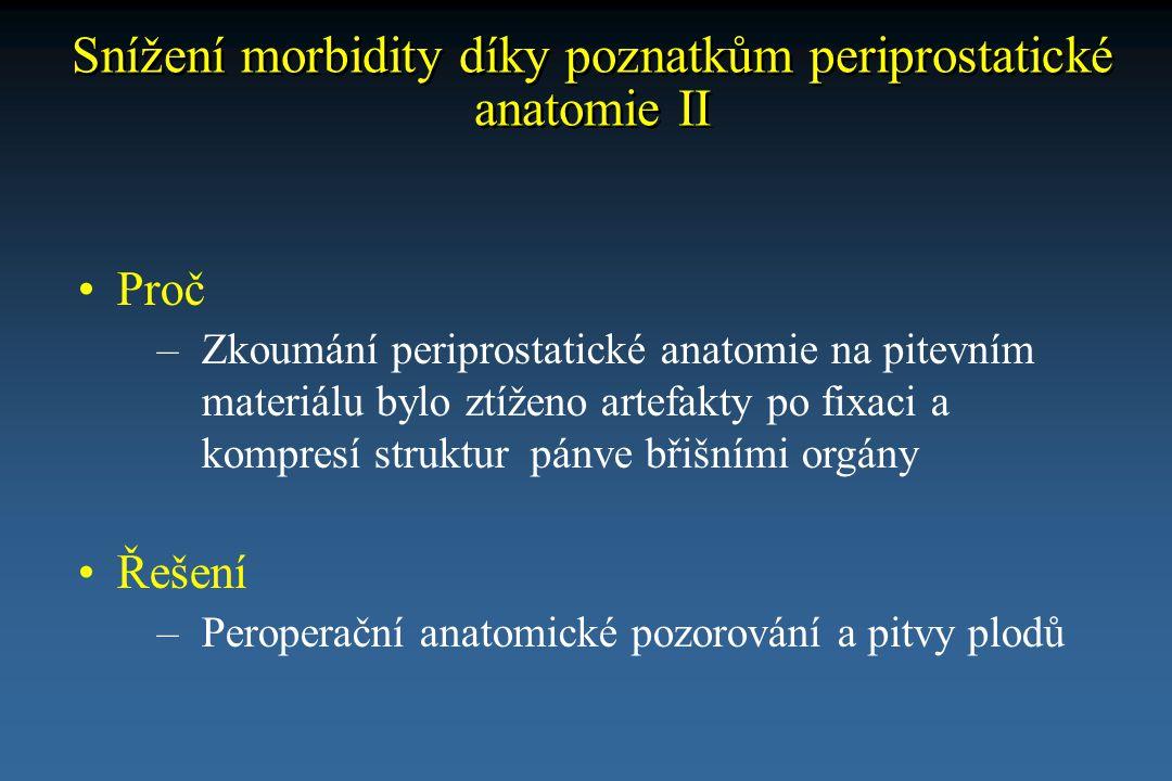 Snížení morbidity díky poznatkům periprostatické anatomie II