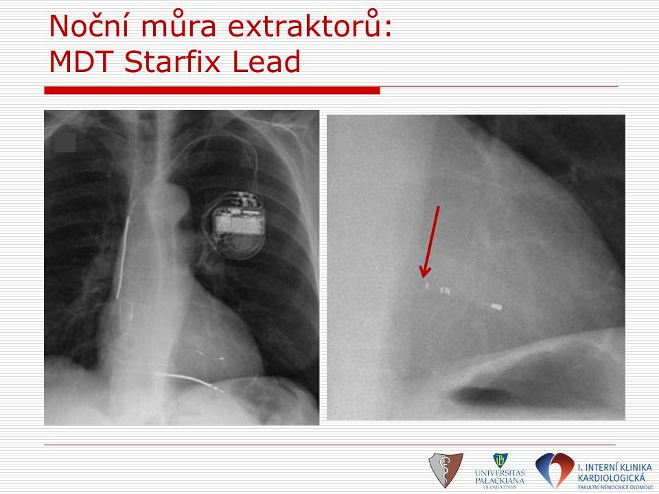 Noční můra extraktorů: MDT Starfix Lead