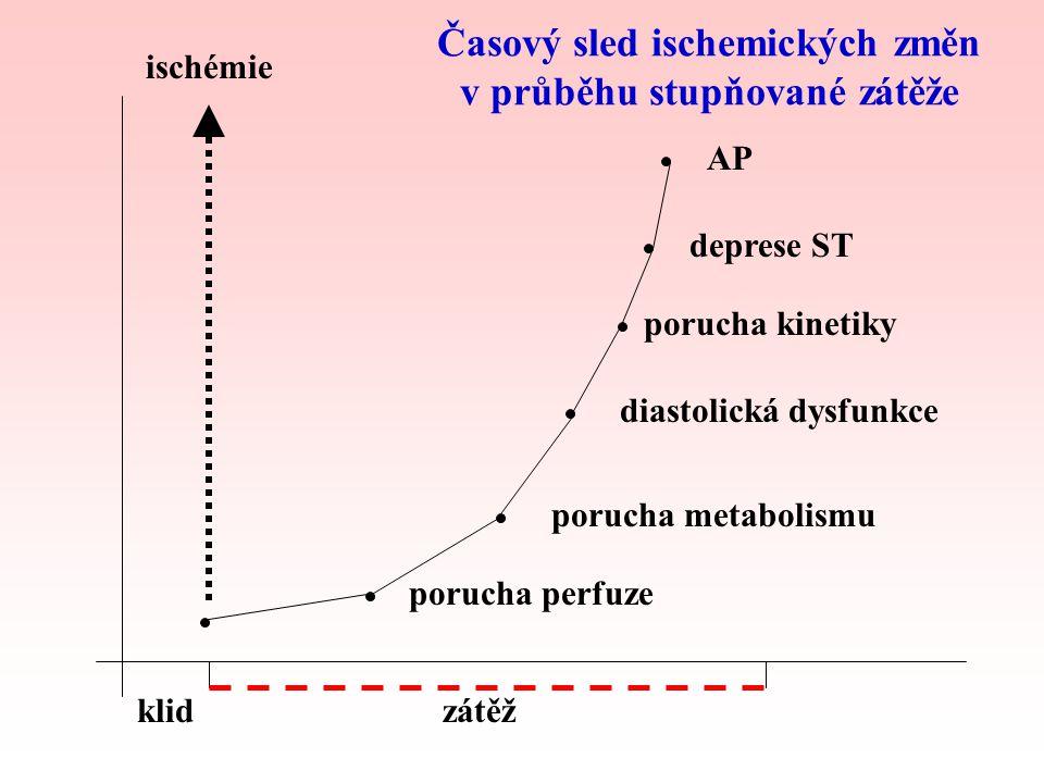 Časový sled ischemických změn v průběhu stupňované zátěže