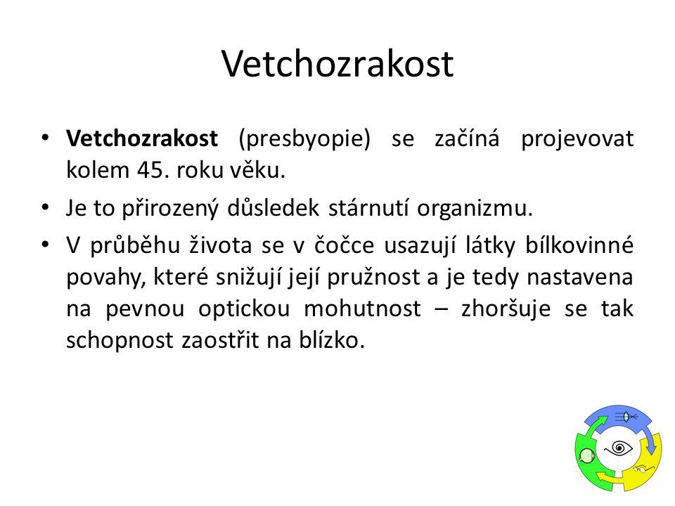 Vetchozrakost Vetchozrakost (presbyopie) se začíná projevovat kolem 45. roku věku. Je to přirozený důsledek stárnutí organizmu.