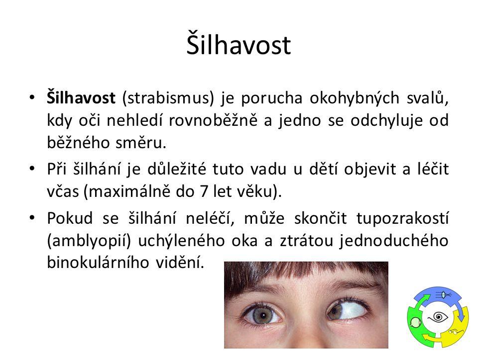 Šilhavost Šilhavost (strabismus) je porucha okohybných svalů, kdy oči nehledí rovnoběžně a jedno se odchyluje od běžného směru.