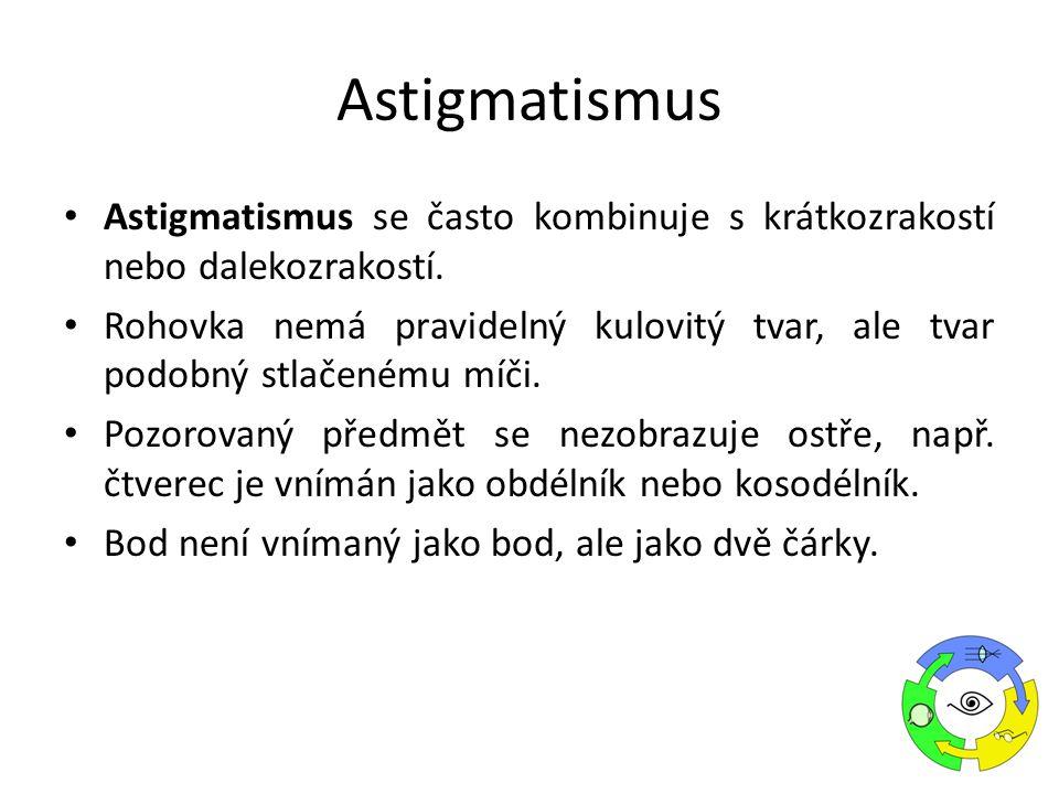 Astigmatismus Astigmatismus se často kombinuje s krátkozrakostí nebo dalekozrakostí.
