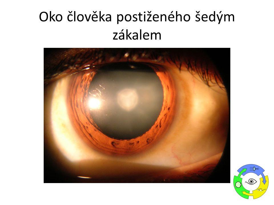 Oko člověka postiženého šedým zákalem