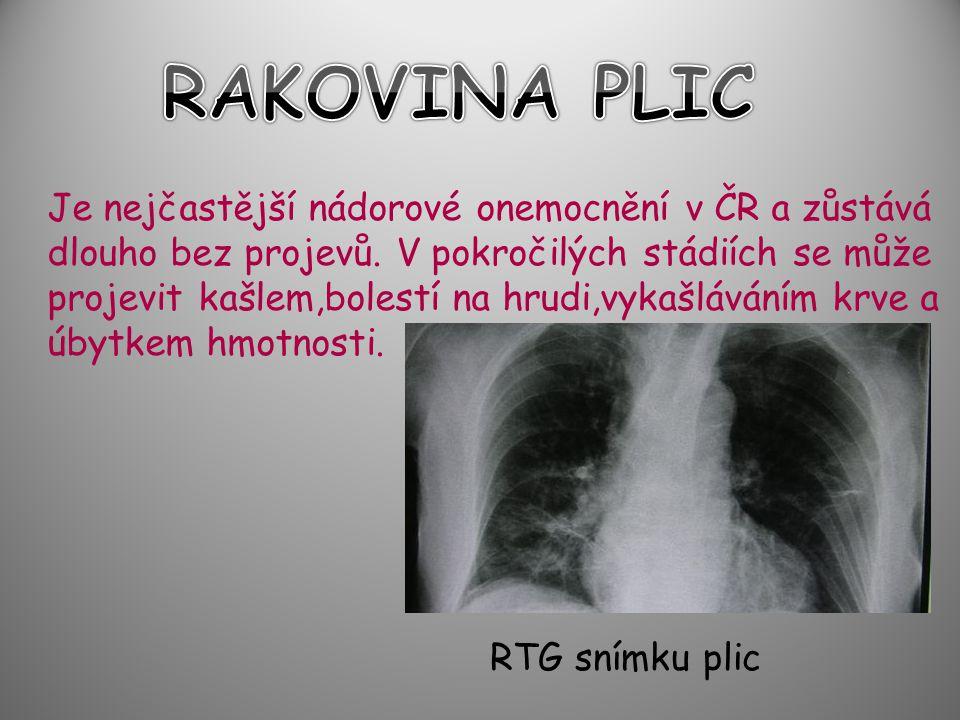 RAKOVINA PLIC Je nejčastější nádorové onemocnění v ČR a zůstává