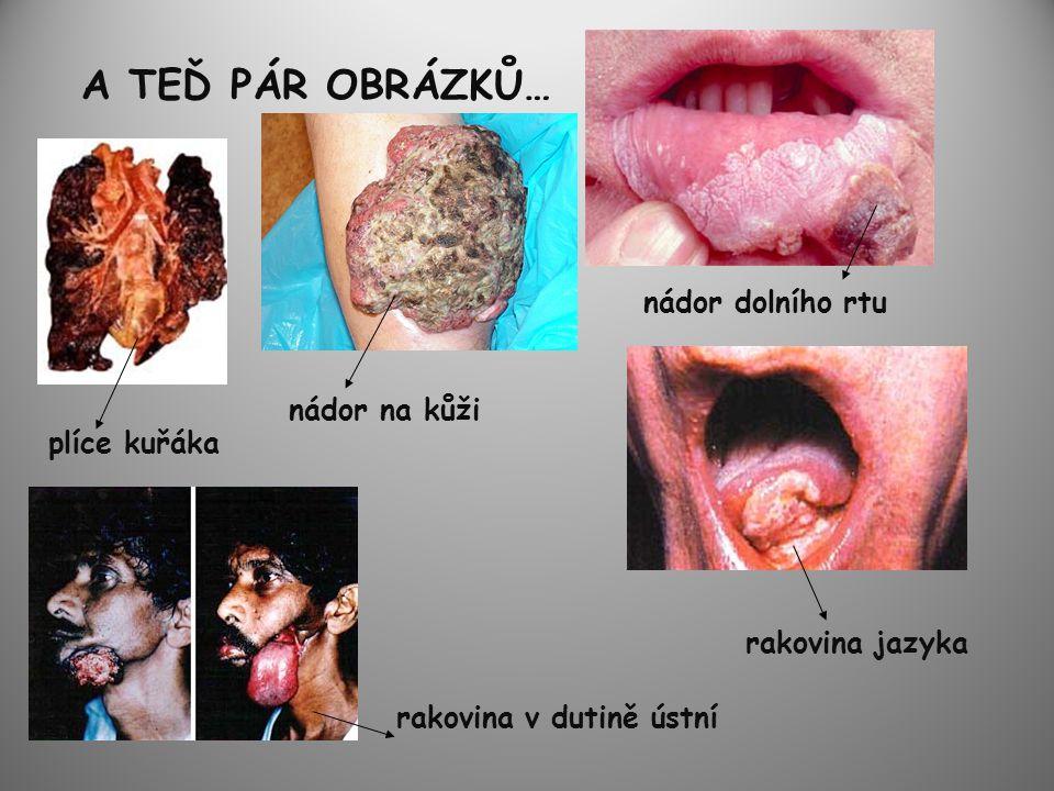 A TEĎ PÁR OBRÁZKŮ… nádor dolního rtu nádor na kůži plíce kuřáka