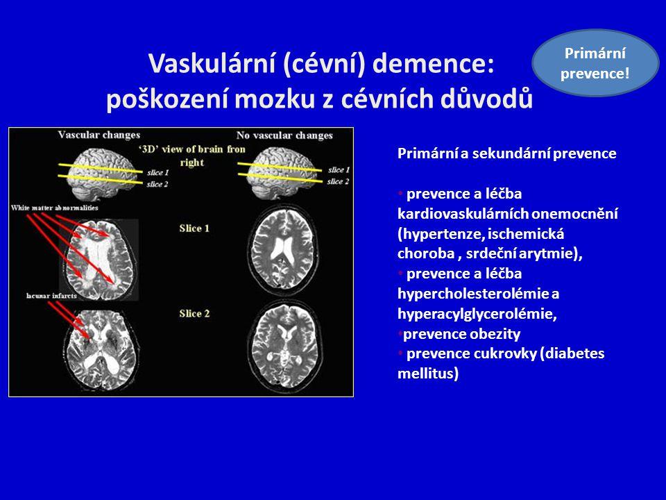 Vaskulární (cévní) demence: poškození mozku z cévních důvodů
