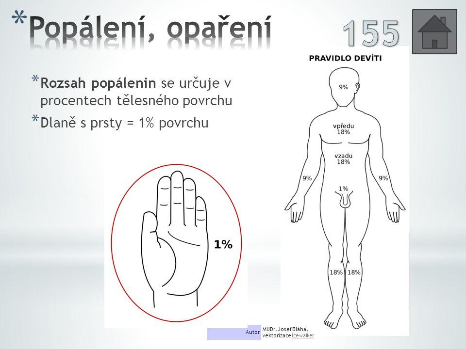 Popálení, opaření 155. Rozsah popálenin se určuje v procentech tělesného povrchu. Dlaně s prsty = 1% povrchu.