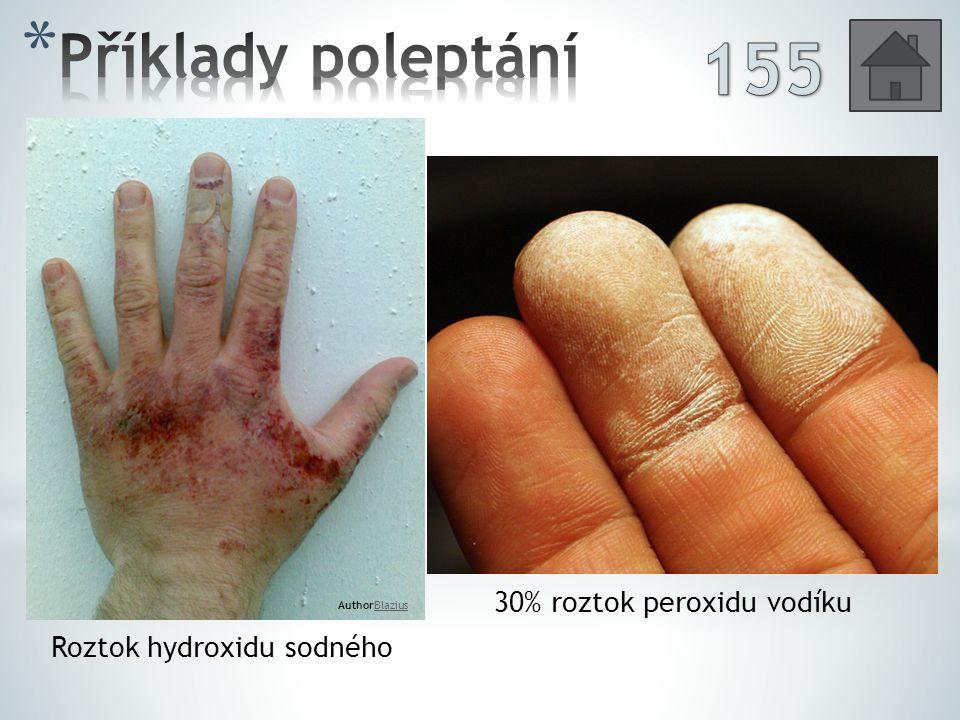 155 Příklady poleptání 30% roztok peroxidu vodíku