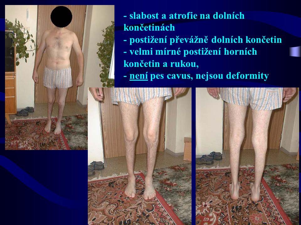 - slabost a atrofie na dolních končetinách - postižení převážně dolních končetin - velmi mírné postižení horních končetin a rukou, - není pes cavus, nejsou deformity