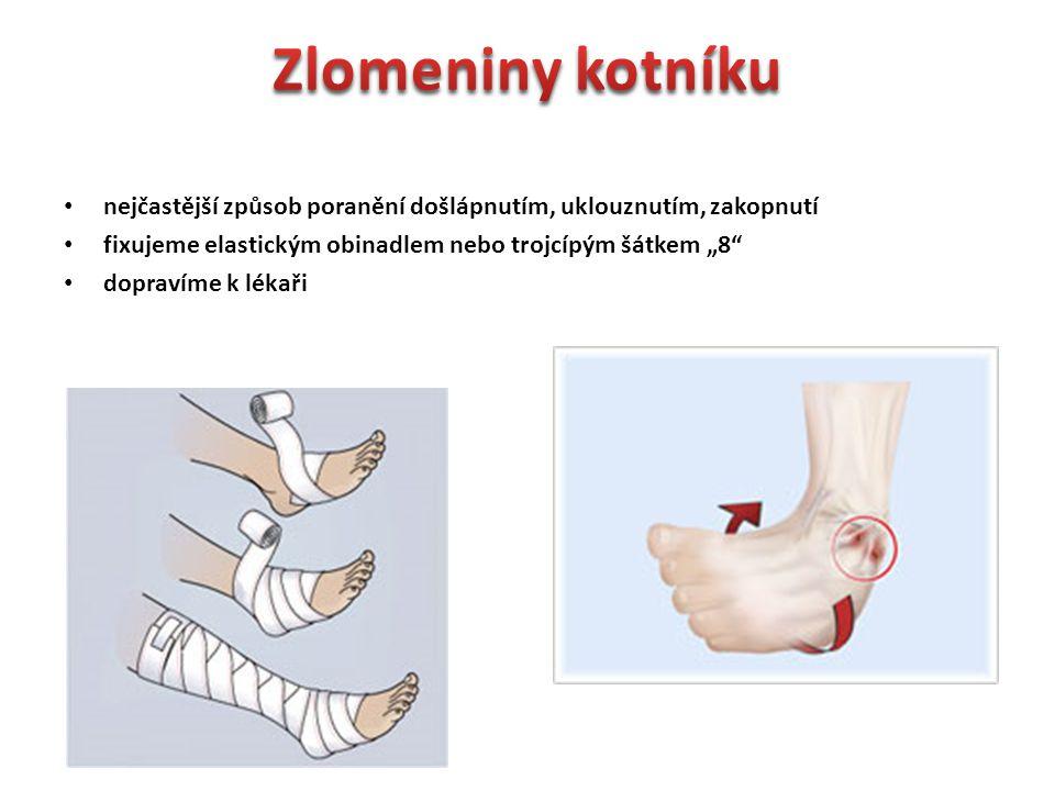 """Zlomeniny kotníku nejčastější způsob poranění došlápnutím, uklouznutím, zakopnutí. fixujeme elastickým obinadlem nebo trojcípým šátkem """"8"""