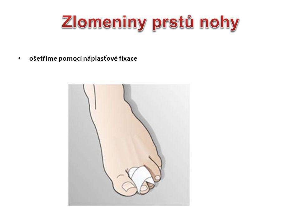 Zlomeniny prstů nohy ošetříme pomocí náplasťové fixace