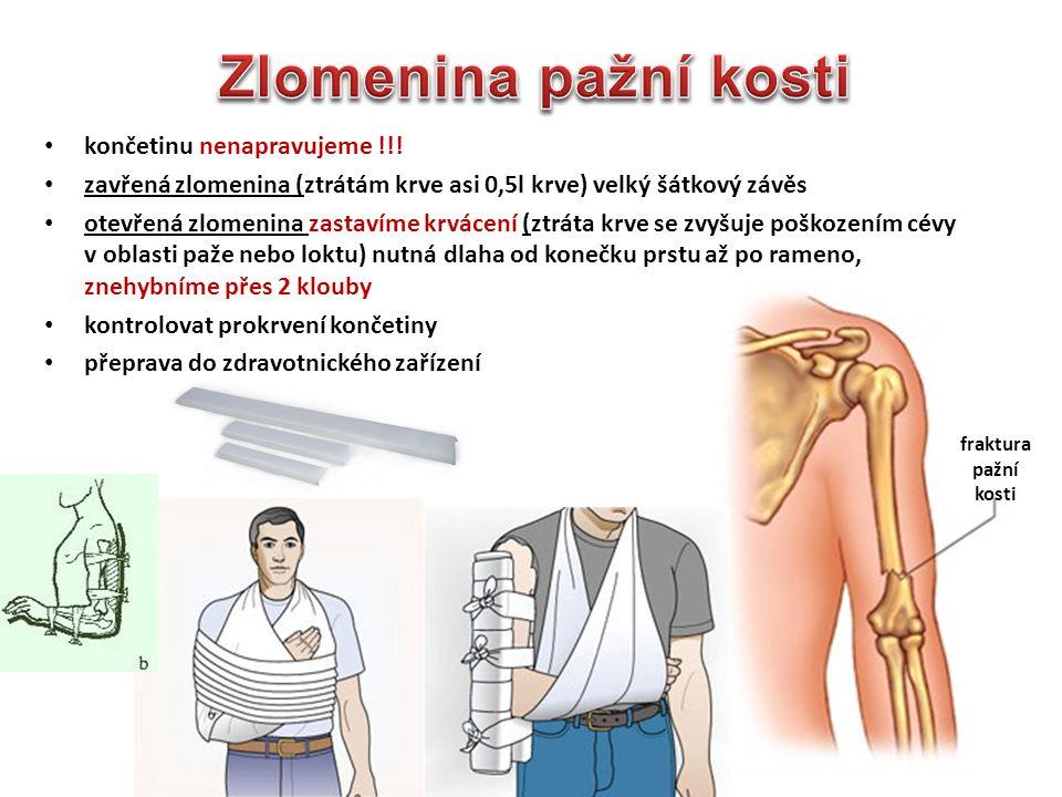 Zlomenina pažní kosti končetinu nenapravujeme !!!