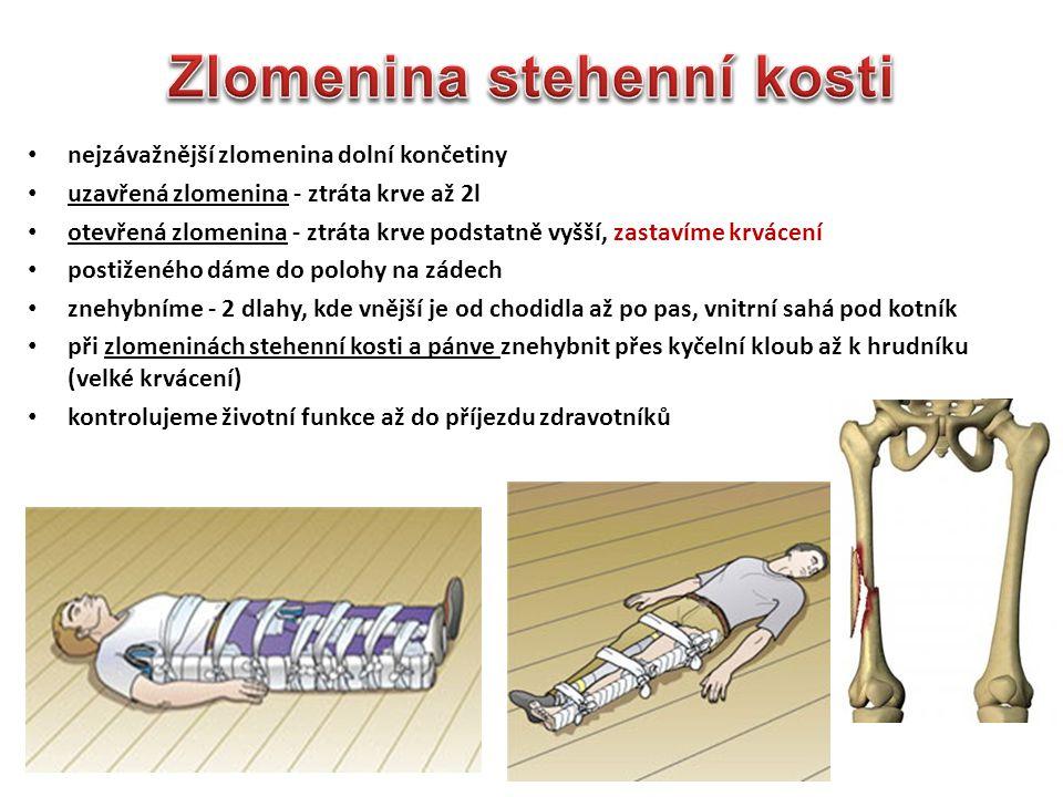 Zlomenina stehenní kosti