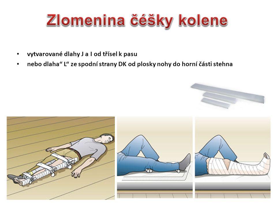 Zlomenina čéšky kolene