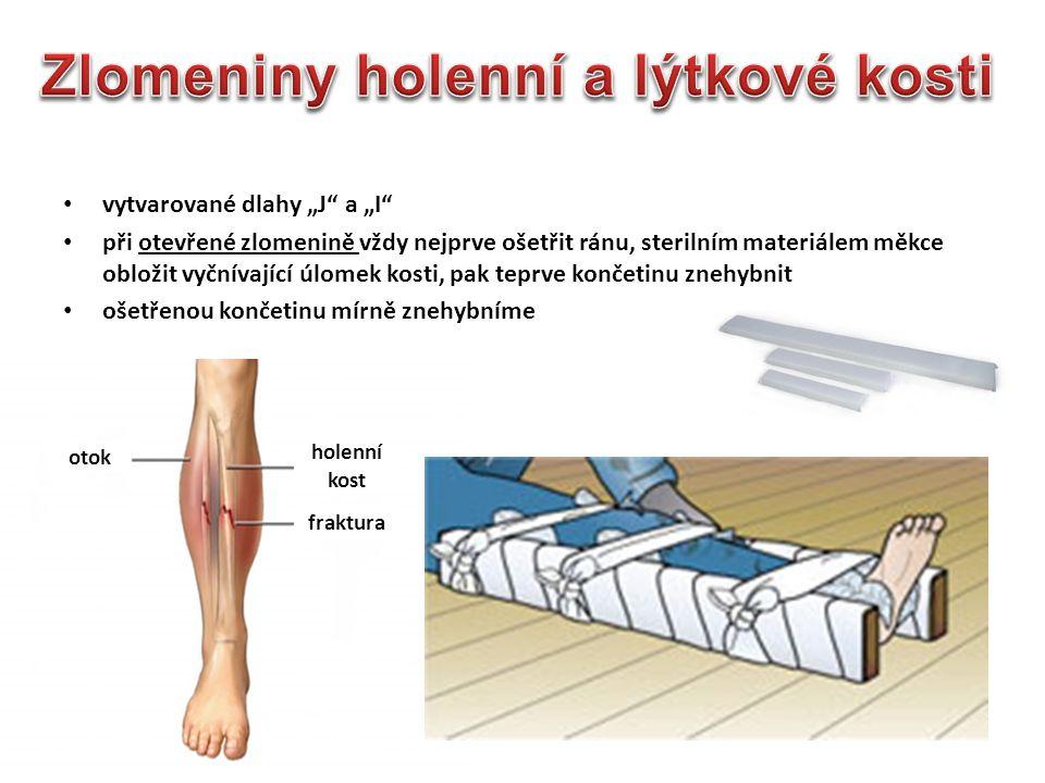 Zlomeniny holenní a lýtkové kosti