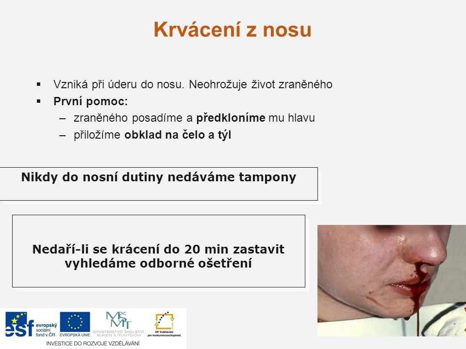 Krvácení z nosu Vzniká při úderu do nosu. Neohrožuje život zraněného