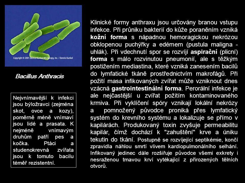 Klinické formy anthraxu jsou určovány branou vstupu infekce
